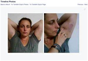 Bruguera-bruises